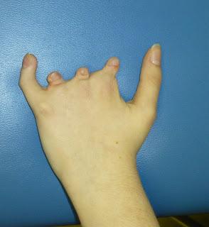 brachybasocamptodactyly
