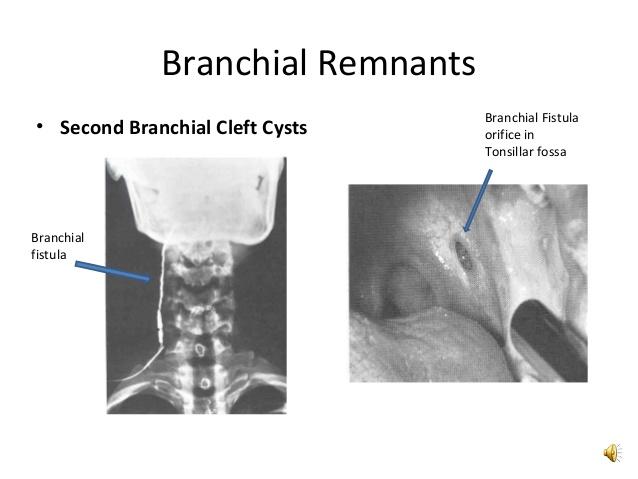 branchial