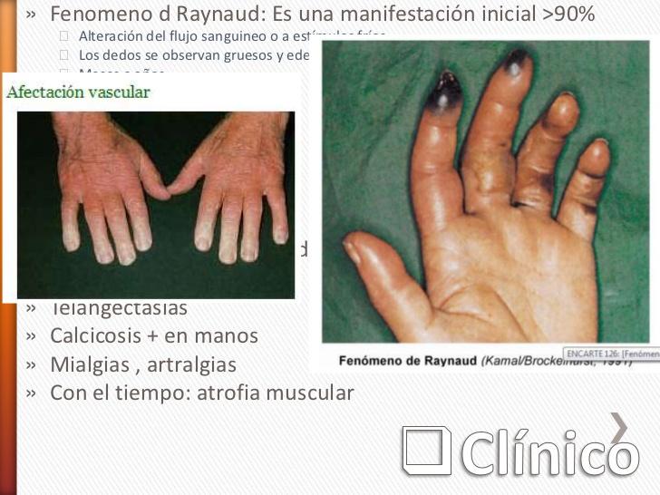 calcicosis