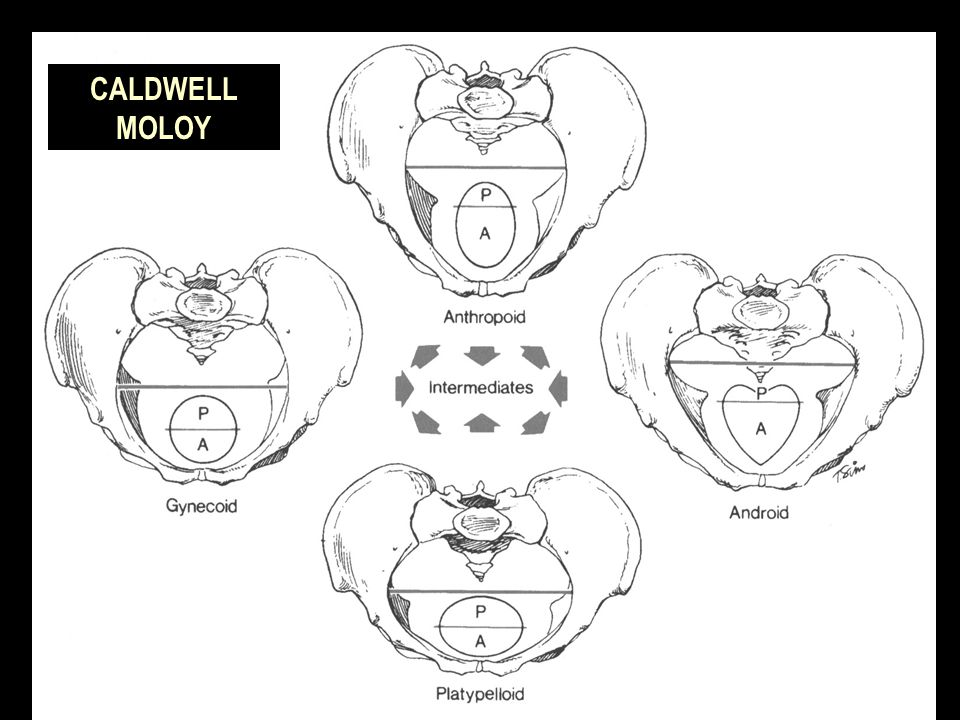 caldwell-moloy classification