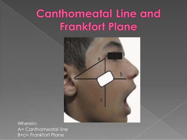 canthomeatal plane
