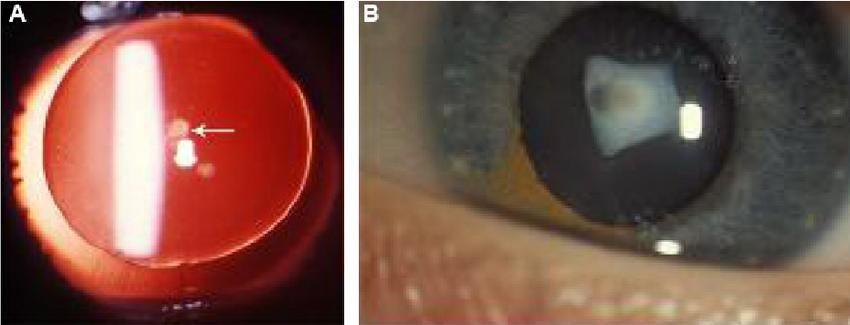 capsulolenticular cataract
