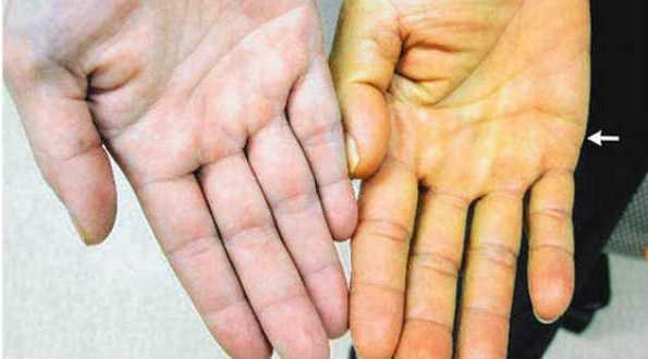 Tratamiento Para La Carotenemia