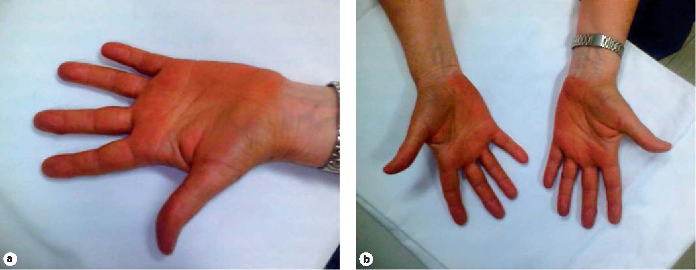 A rare cutaneous case of carotenosis cutis: lycopenaemia. - Semantic Scholar