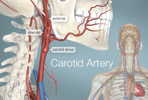 Picture of the Carotid Artery