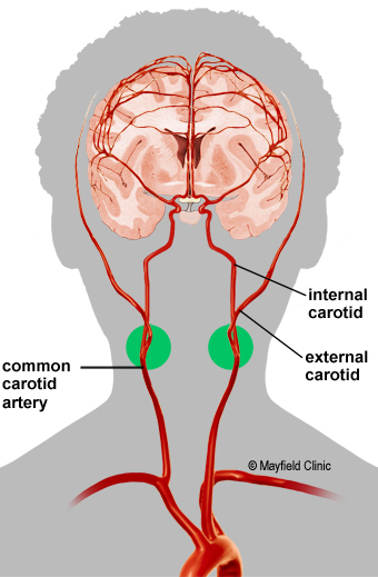 The common carotid artery divides into the internal and external carotid  arteries. The bifurcation (green circle) is the most common site of plaque  buildup.