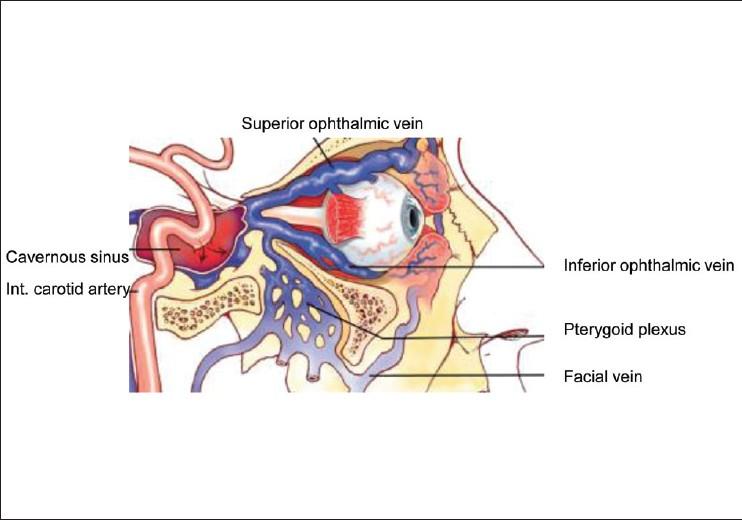 carotid-cavernous fistula