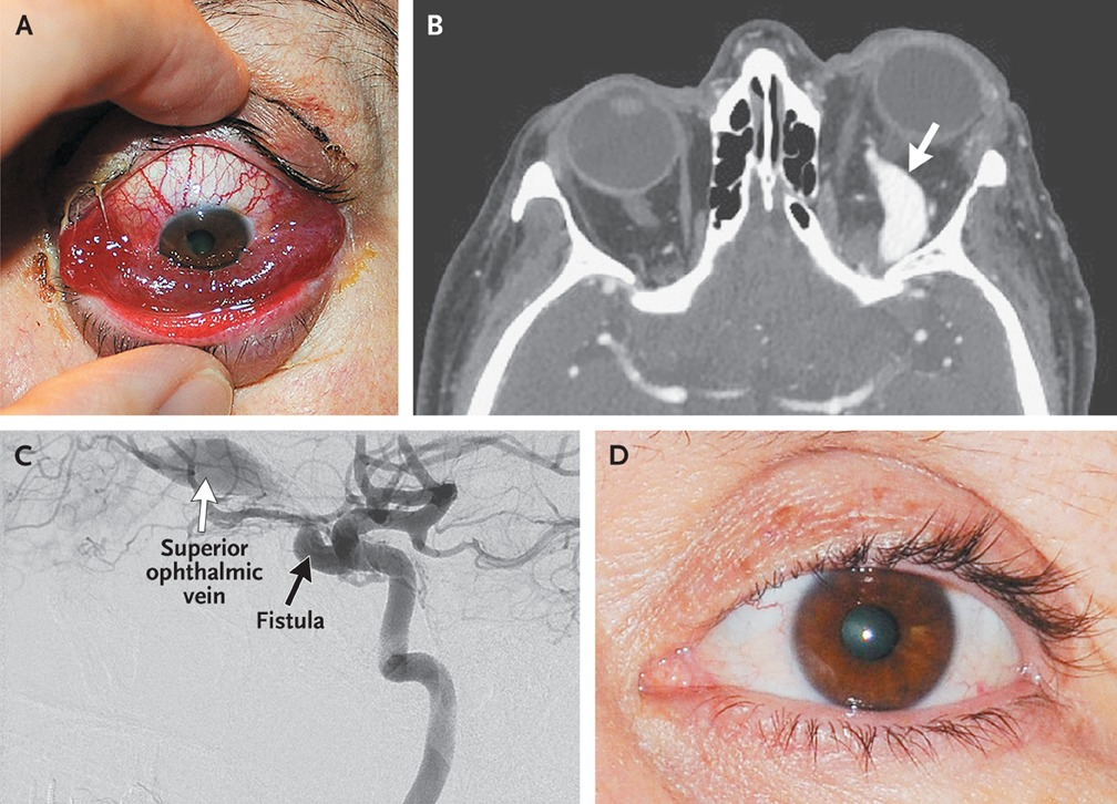 A 55-year-old woman with a long history of hypertension presented to the  hospital with a 1-day history of periorbital discomfort, inferior chemosis,