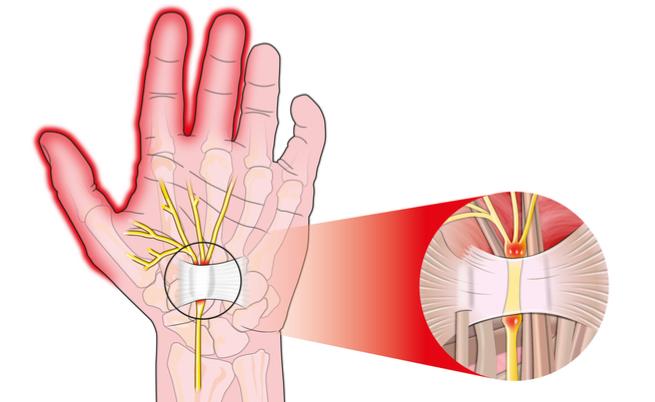 Sindrome del tunnel carpale: i rimedi più efficaci