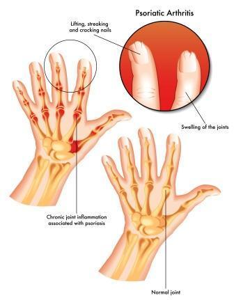 chronic absorptive arthritis
