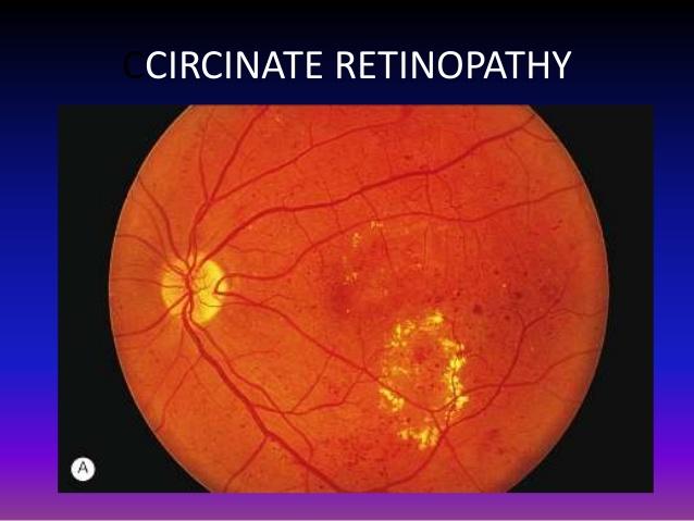 circinate retinopathy