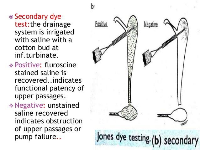 dacryocystectomy
