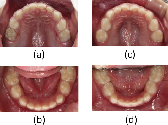 deciduous dentition