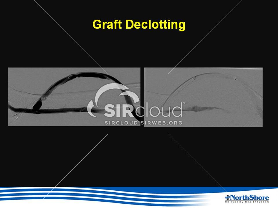 declotting