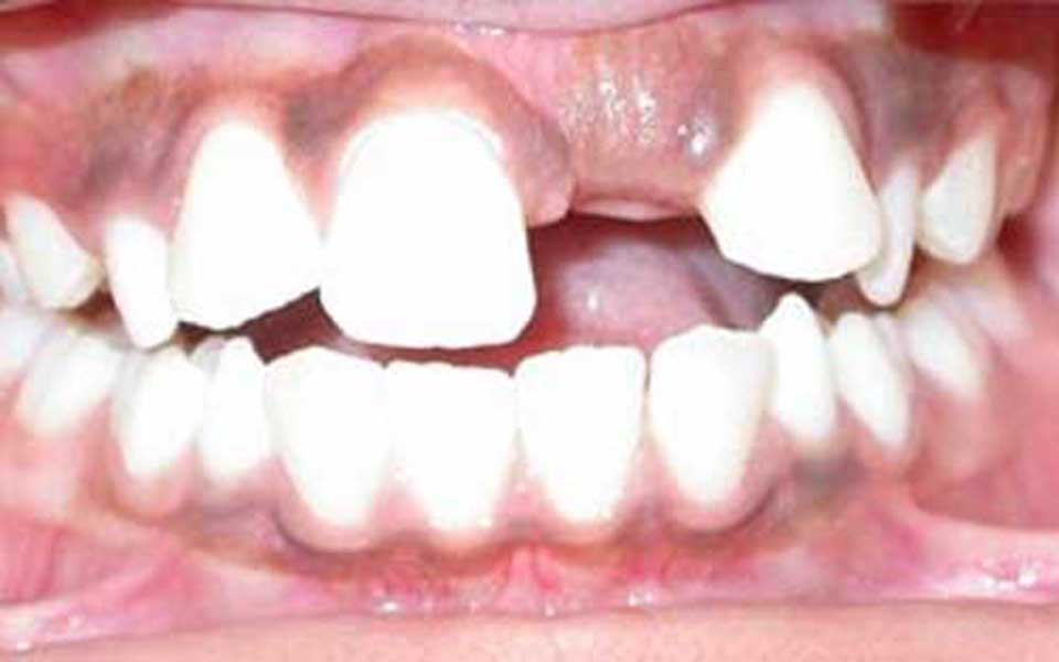 Normal eruption of teeth is of primary importance to dentists. Eruption is  the process which causes the tooth to move from its original position in  the bone
