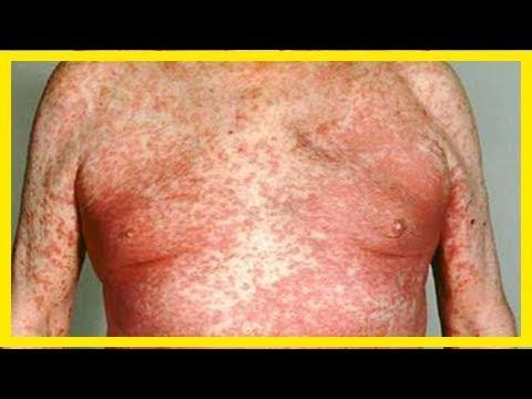 exfoliative dermatitis