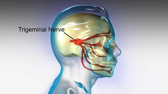 fothergill's neuralgia
