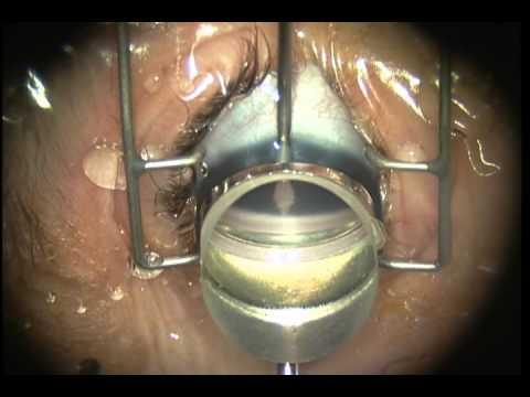 goniotomy