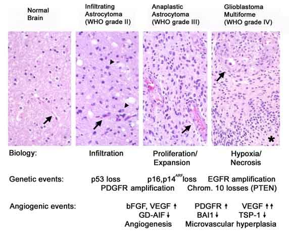 grade i astrocytoma
