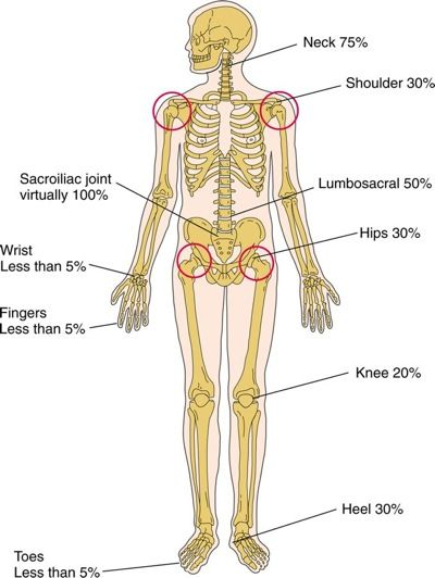 marie-strümpell disease