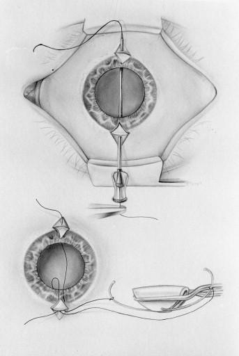 peritectomy