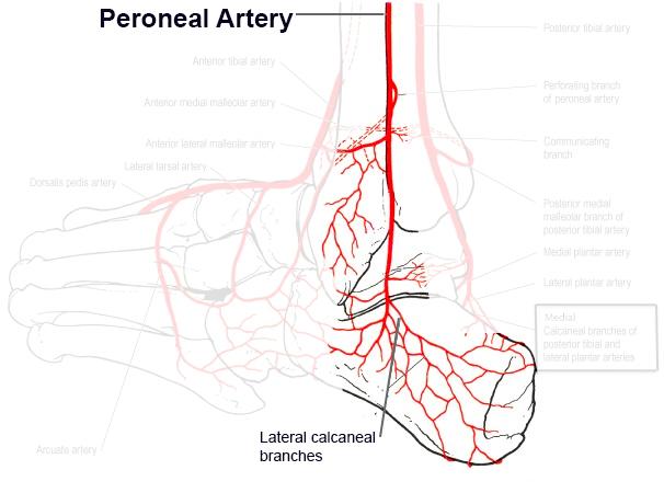peroneal artery
