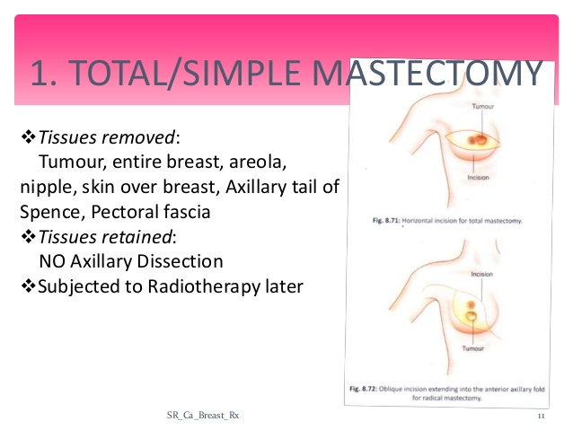 simple mastectomy