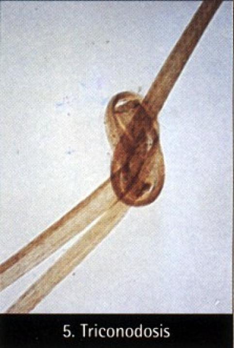 trichonodosis