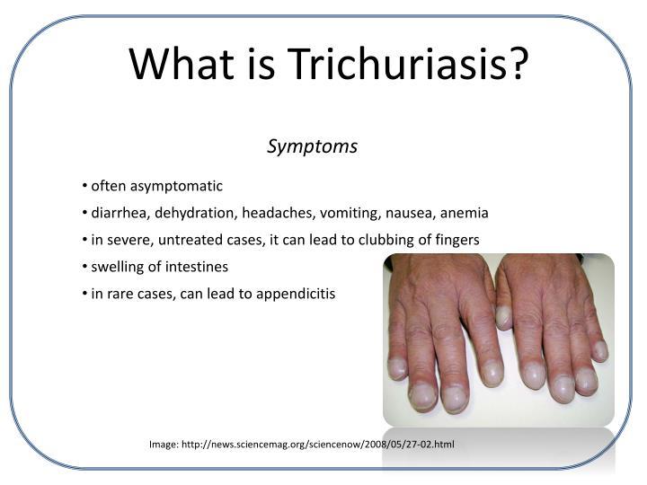 trichuriasis