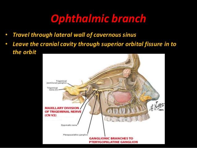 trigeminal cavity