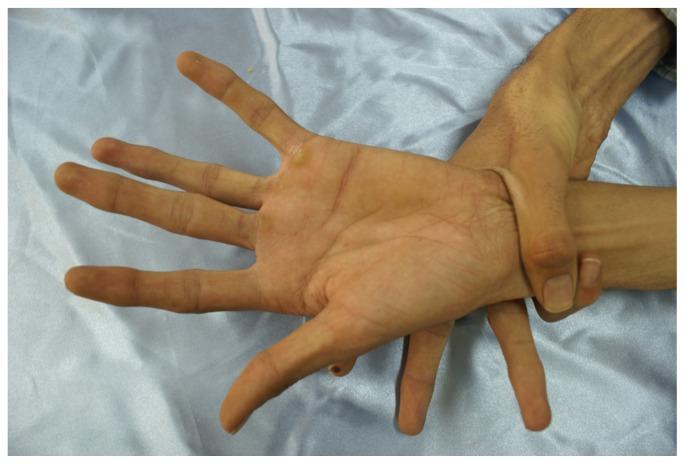 wrist sign