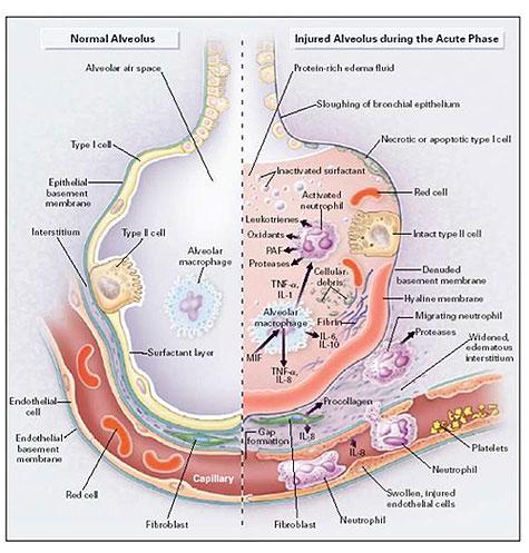 Pathophysiology during acute/exudate phase of ARDS/ALI