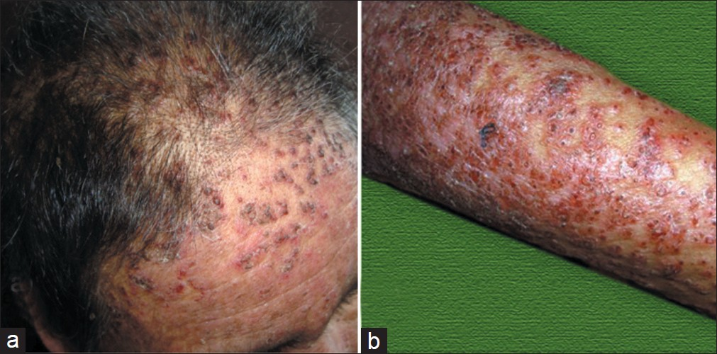 Adult T-cell leukemia/lymphoma: A retroviral malady Khader A, Shaan M,  Sasidharanpillai S, Pakran J, Rajan U - Indian J Dermatol