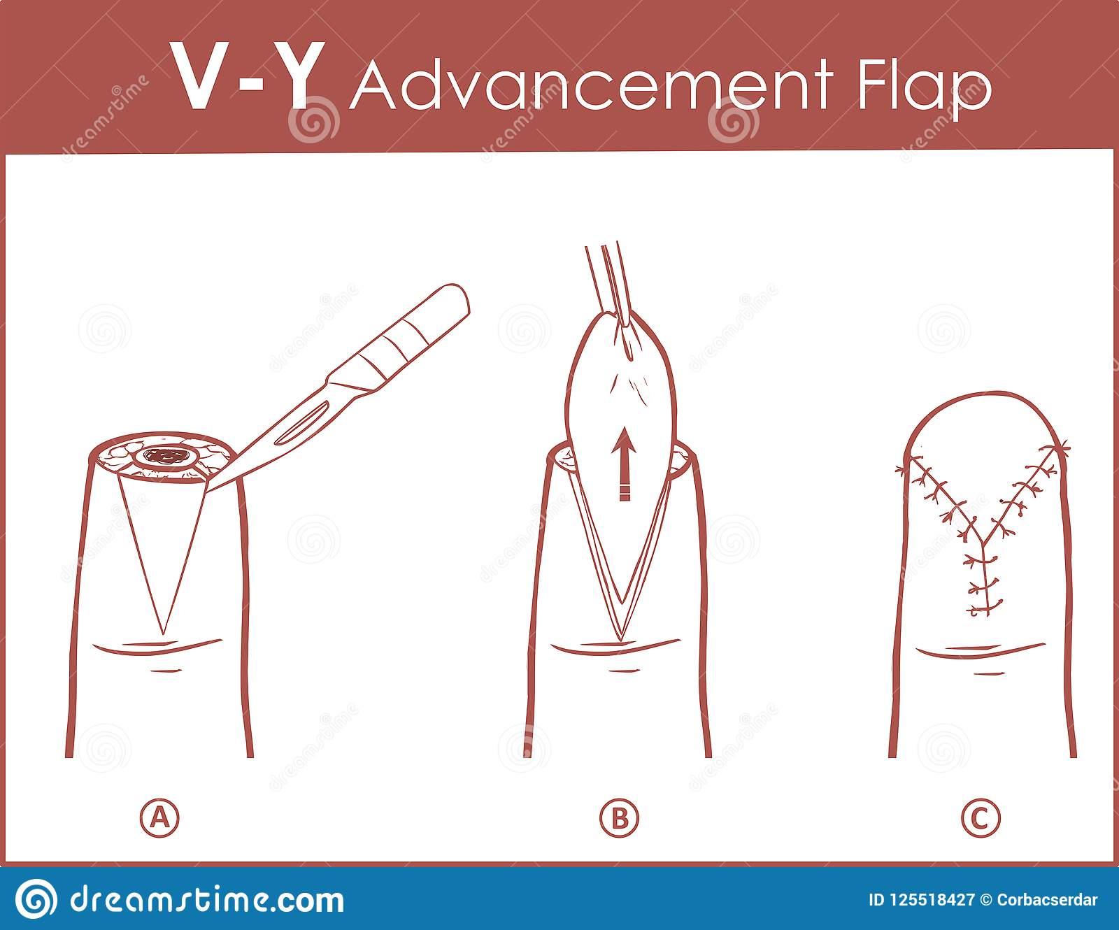 Vector illustration of a V-Y advancement flap