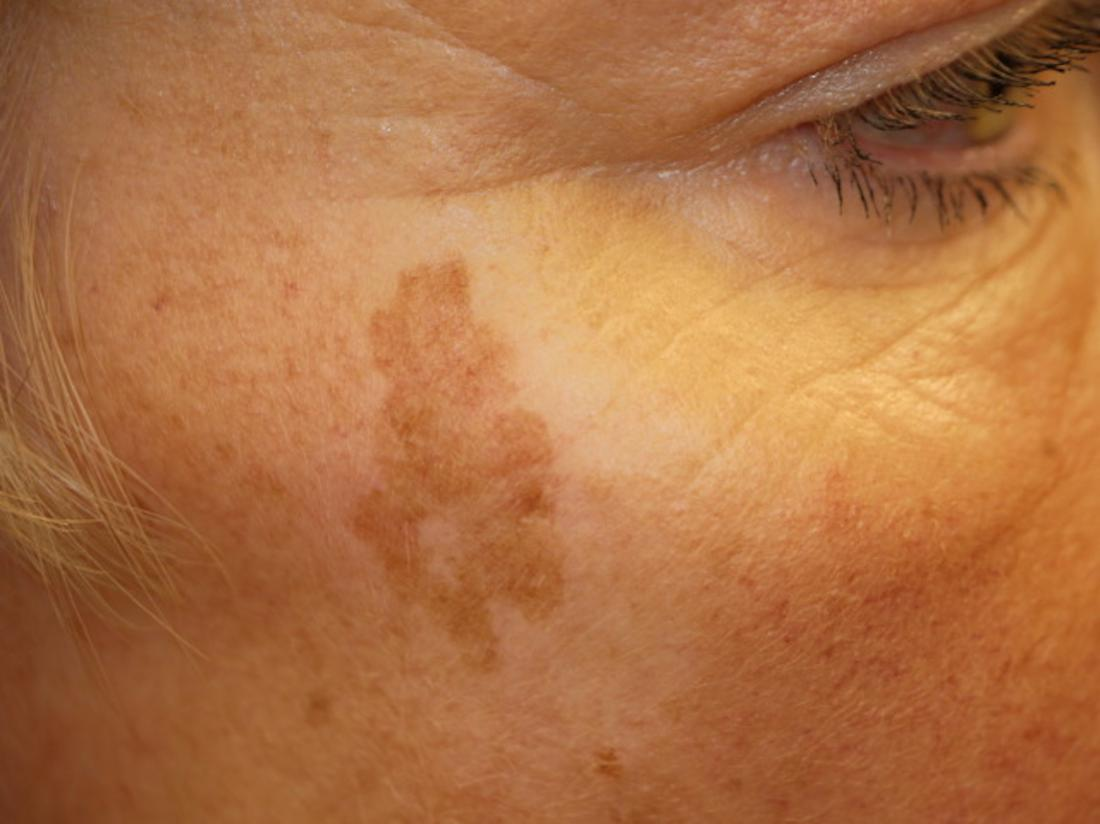 Age spot or liver spot on the face Image credit: DermNet,