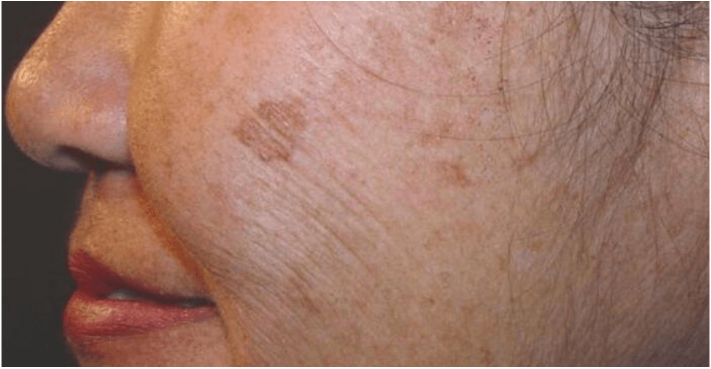 age spot removal