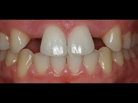 Entrevista al Dr. Pablo Furelos en Cadena Cope: Agenesia Dental