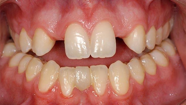 En qué consiste la agenesia dental