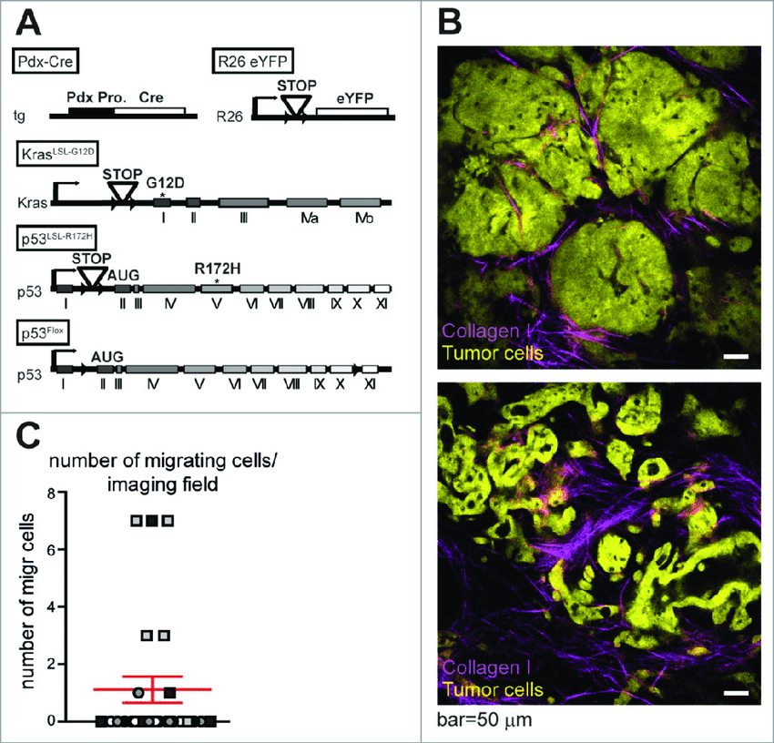 (A)genetic fluorescent mouse model of pancreatic cancer. (A) Schematic  representation of the fluorescent mouse model in which all tumor cells  express YFP