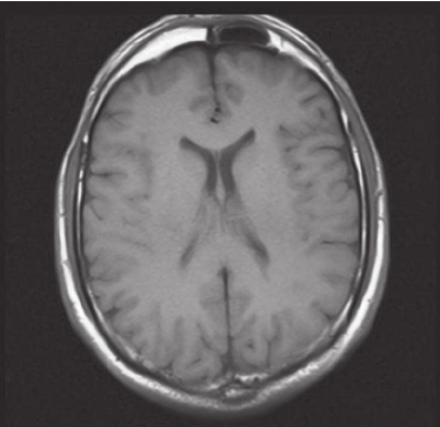 The agenetic right compartment of the frontal sinus is seen in the axial  image of cranium