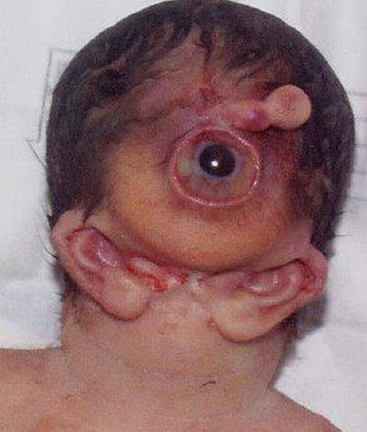 Agnathia–otocephaly - a rare, often lethal malformation characterized by  absence or hypoplasia of the mandible, microstomia, hypoglossia/aglossia,