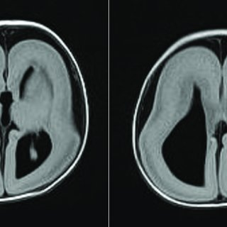 A brain magnetic resonance imaging showed agyria, colpocephaly, agenesis of  corpus callosum and band