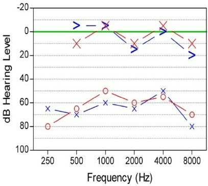 Unaided audiogram showing bilateral maximal air-bone gap with a hearing  threshold of around 55 dB on both sides. Red line right ear, blue line left  ear In