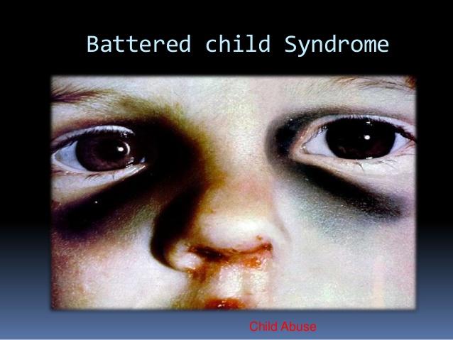 Battered child Syndrome Child Abuse; 14.