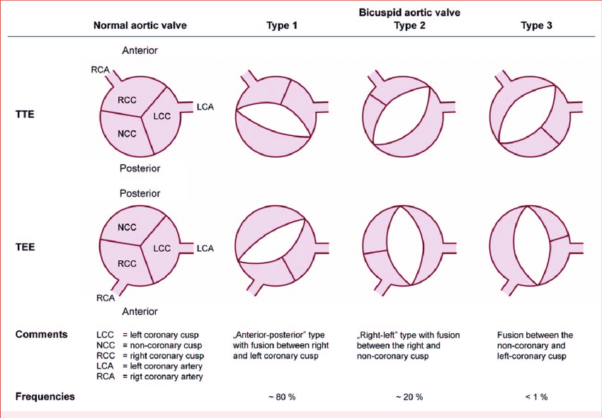 Anatomical types of bicuspid aortic valve (BAV) according to a classifi  cation system suggested by Schaefer and colleagues [93]. Type 1 exhibits  congenital