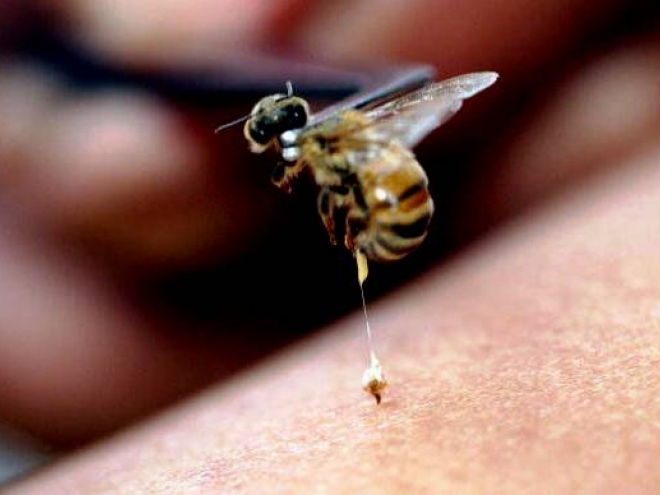 How to treat a bee sting?