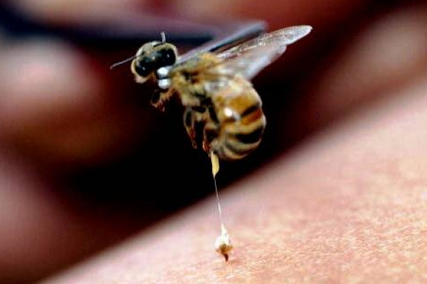 About Bee Stings