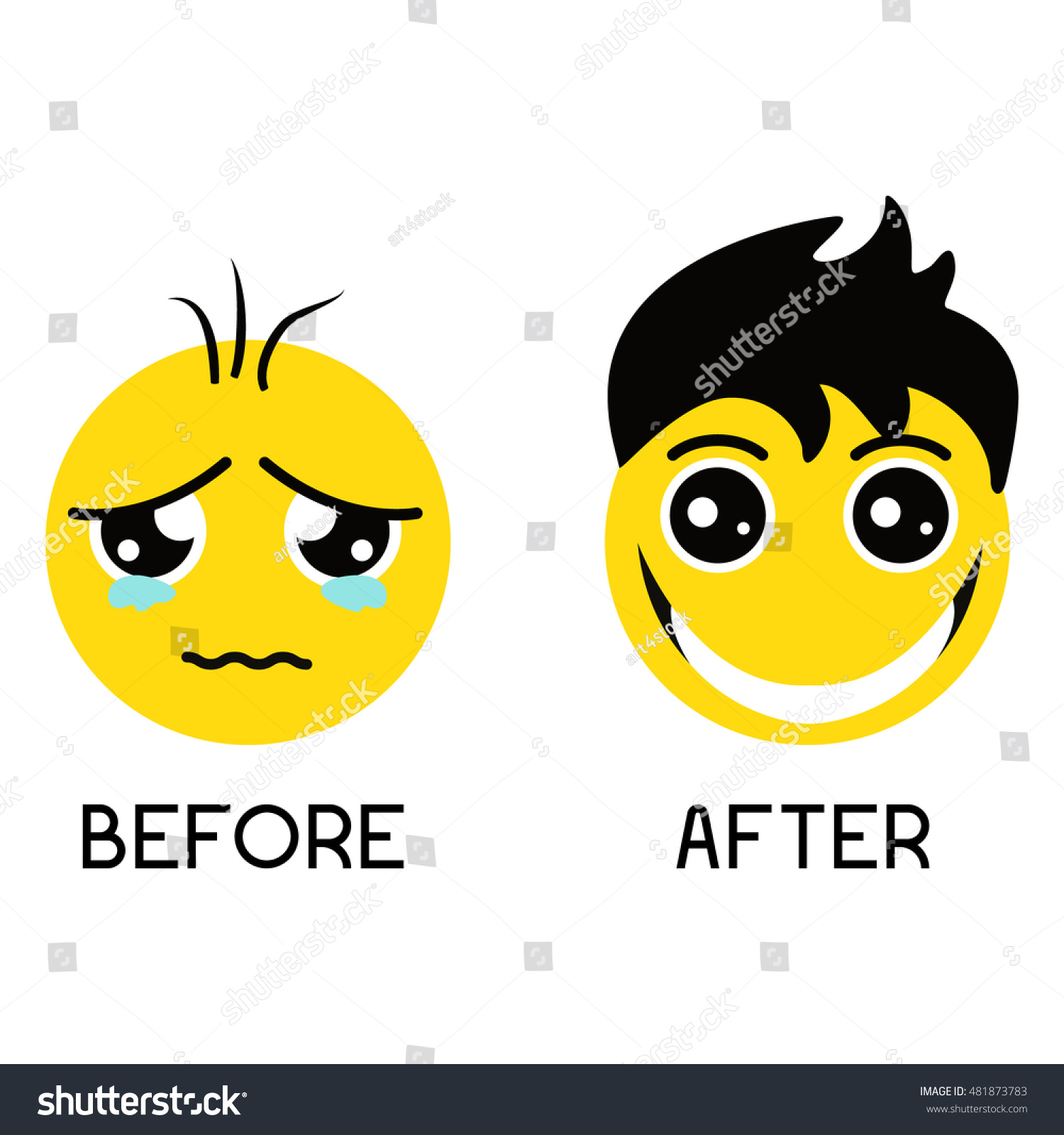 Sad balding emoticon before alopecia treatment and happy smiley with  gorgeous hair after procedure. Vector