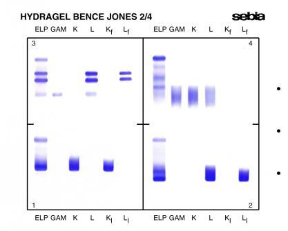 Un desarrollo reciente en el GELSCAN aporta la capacidad de cuantificar la  proteína monoclonal en el carril ELP.