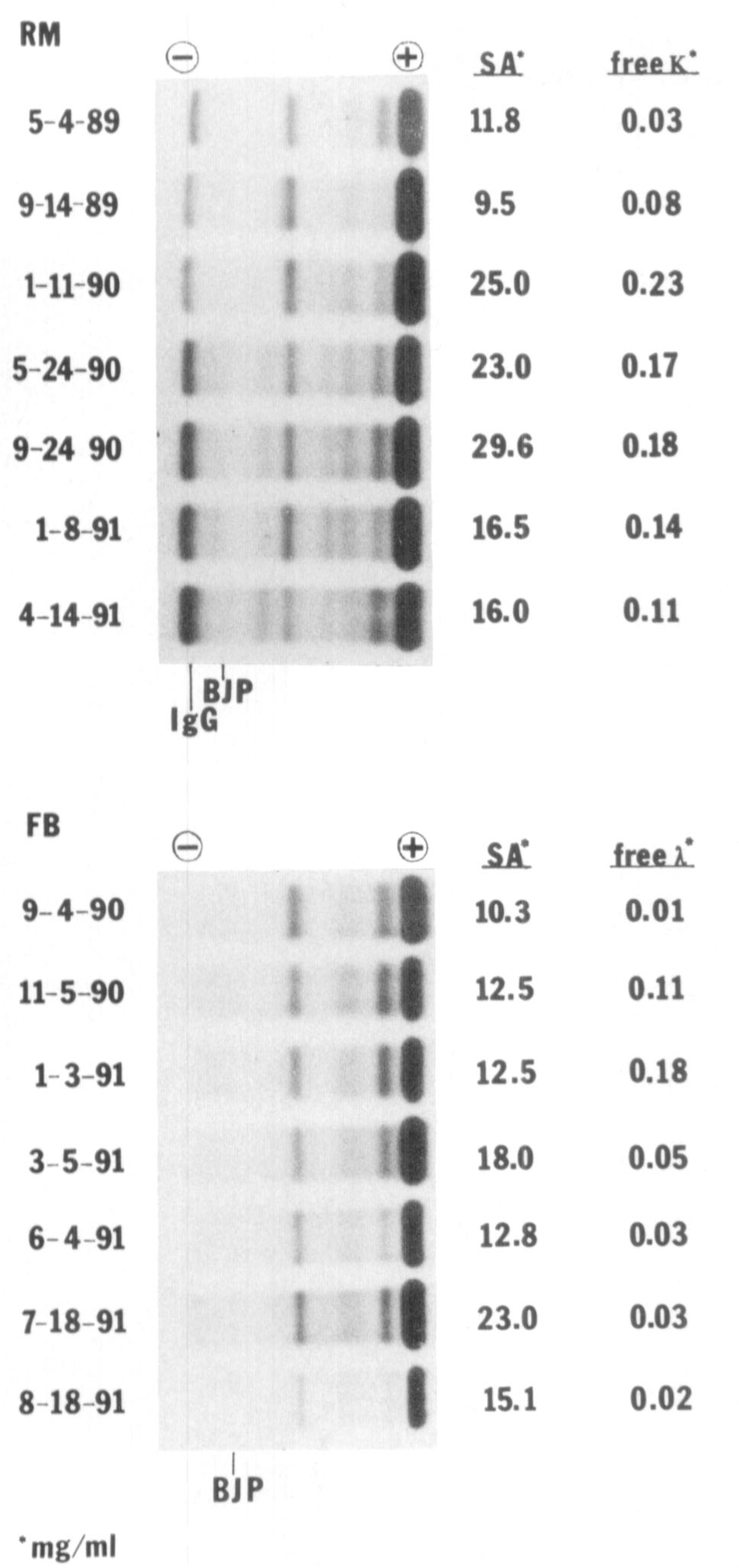 Immunoquantification of Bence Jones proteinuria in patients with nephrotic  syndrome. Agarose gel electropherograms of lyophilized , reconstituted (50  mg/mL)